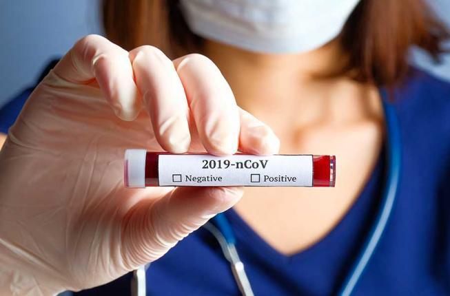 Collegamento a Coronavirus: Aggiornamenti e disposizioni di Ateneo in merito all'emergenza coronavirus